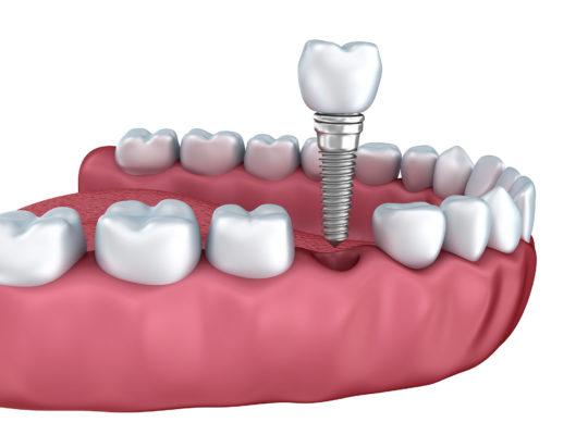 teeth and dental implant