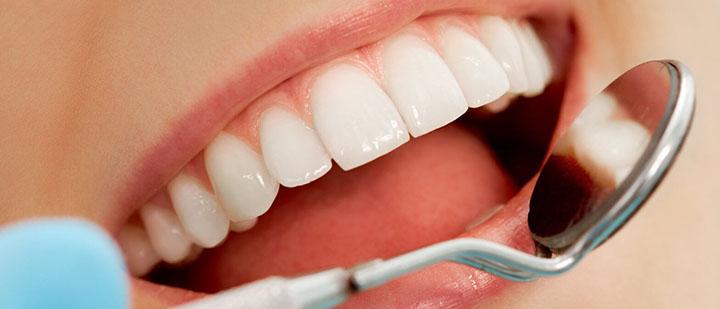 dental-office-san-diego-care