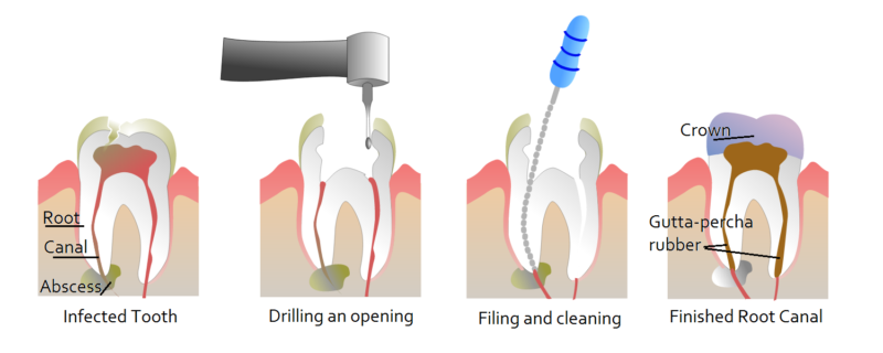 root-canal-treatment-san-diego