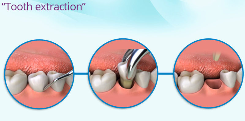 tooth_extraction-in-san-diego