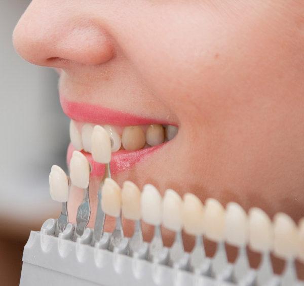 veneers dental san diego