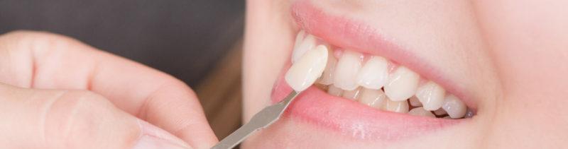 veneers-dental-san-diego