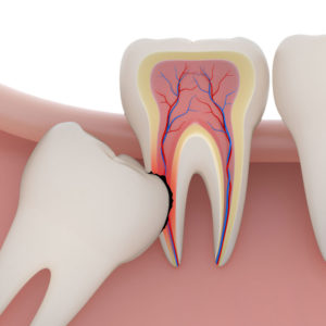 wisdom-tooth-extraction san diego