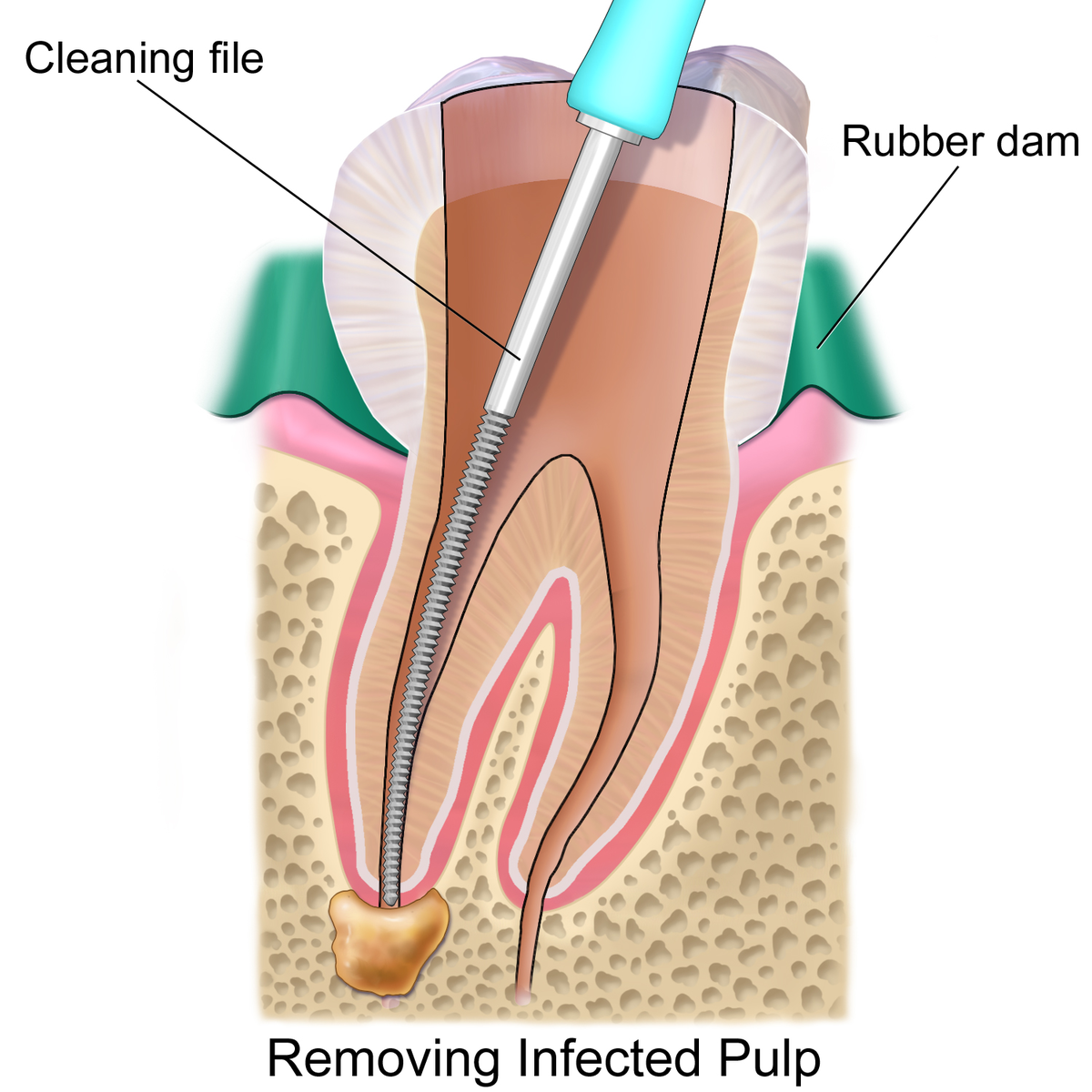 Root Canal Treatment San Diego Archives Dentist In San Diego