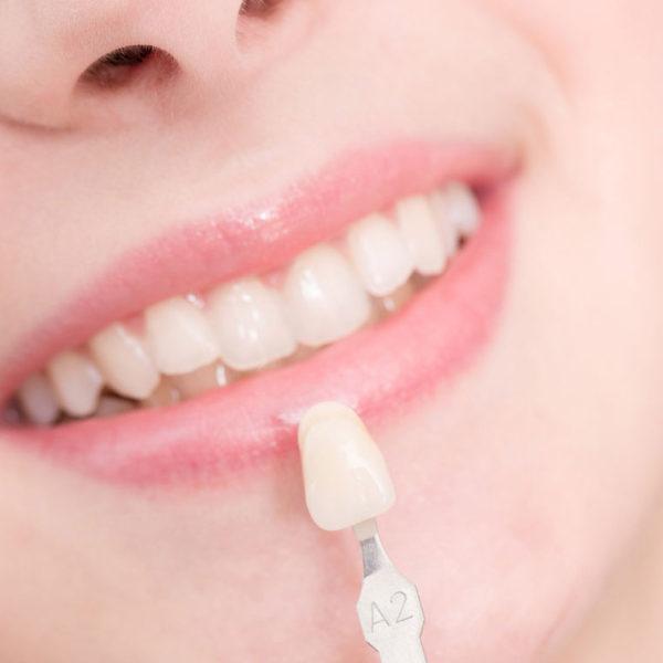same day dental-crowns-bridges