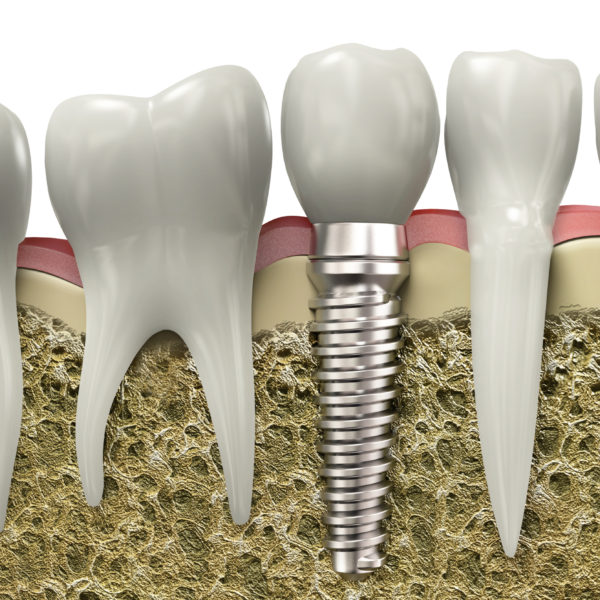 dental-implants-san-diego