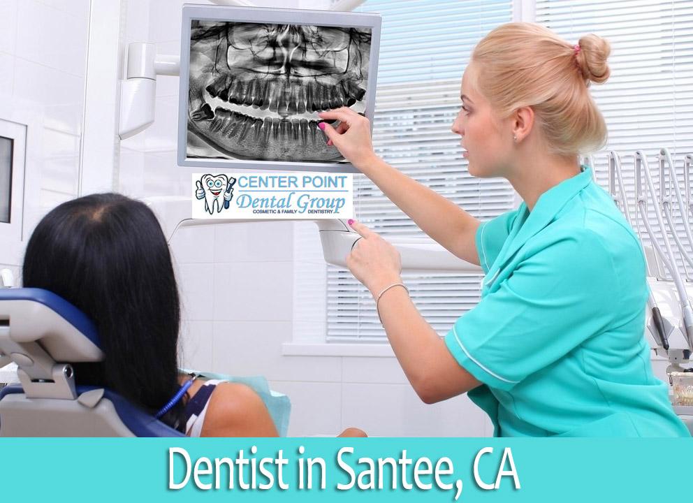 Santee dentist office