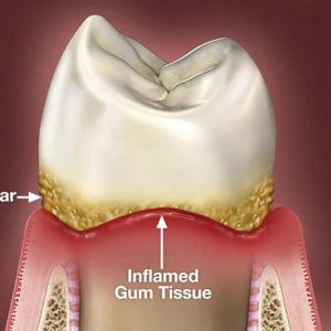 gum-disease san diego
