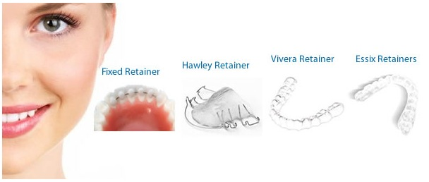 San Diego Orthodontics And Retainers Dentist In San Diego